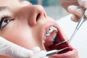 murfreesboro dentist