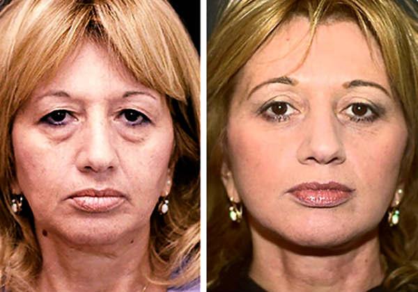 Bioxelan Anti Aging Wrinkle Cream