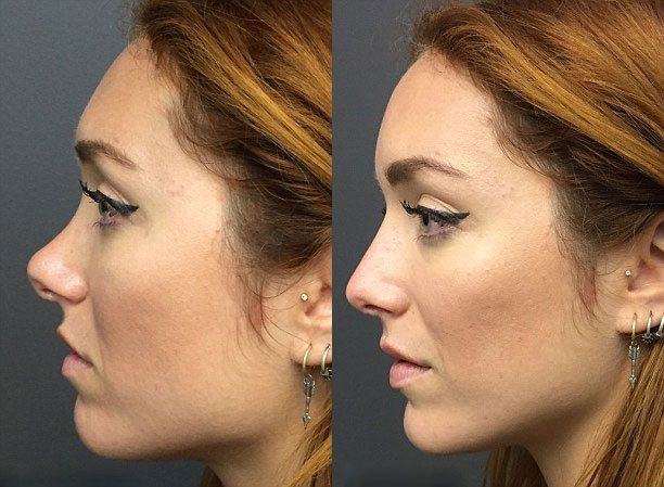 nose lift specialist